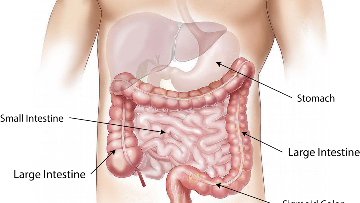Ulcerative Colitis – It Can Be a Pain in the Butt!
