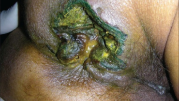Anorectal Abscesses Caused by Constipation-OUCH!