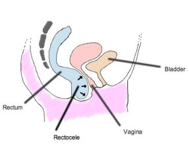 Could a Rectocele be Causing your Chronic Constipation?