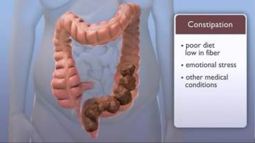 What Constipation Can Do to Your Health